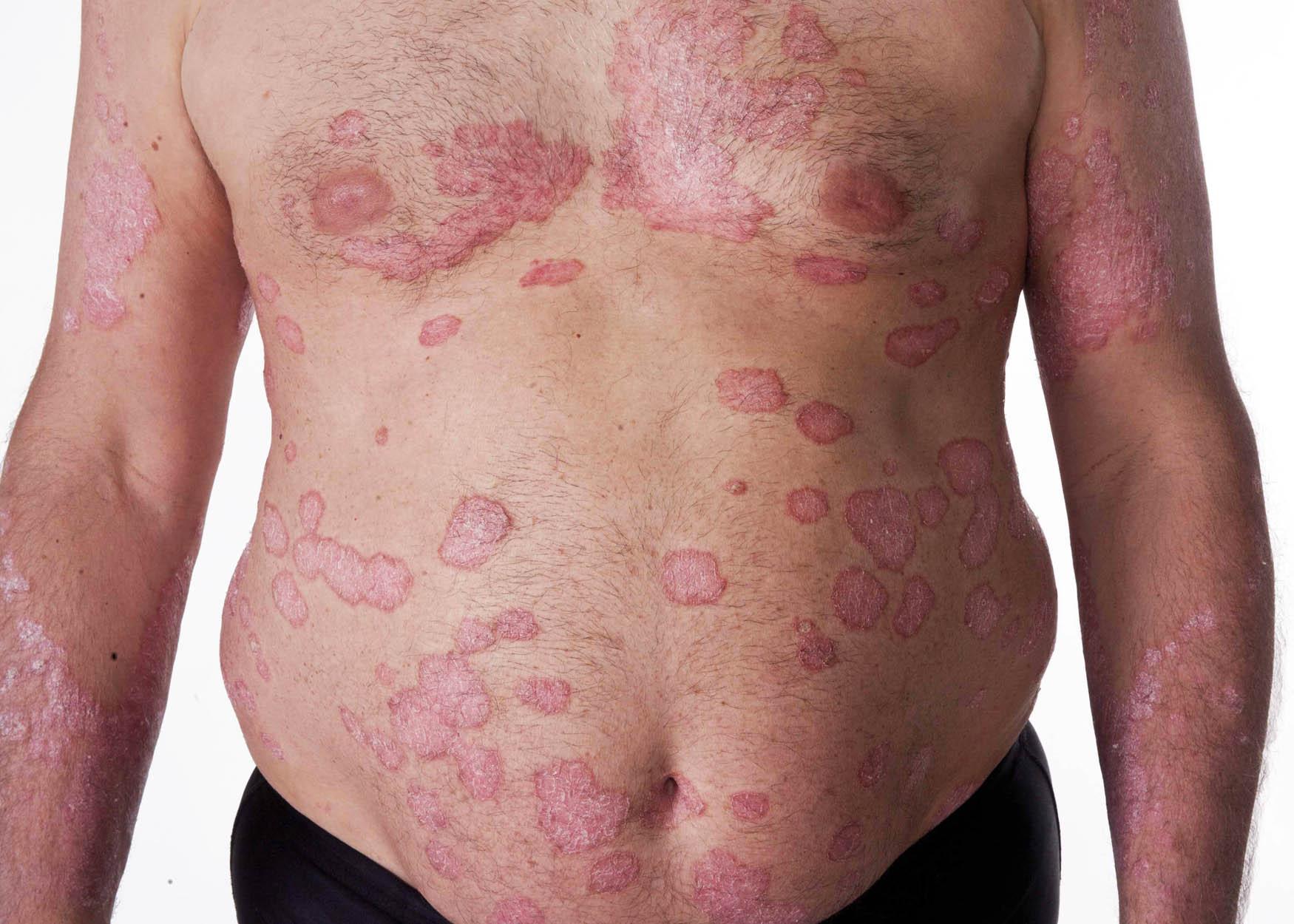 Le tableau clinique des formes du psoriasis